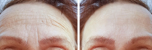 Male Botox in Chester