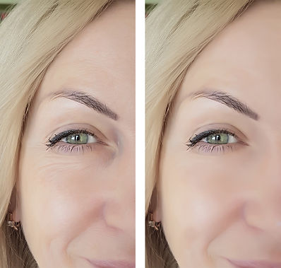 Botox in Tarporley Dr Hamilton example