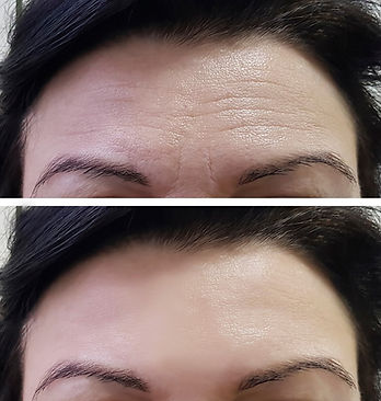 Botox Wirral forehead example Dr Hamilton Cosmetics