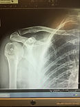 X-Ray of compact fracture of shoulder after 10 Matrix Repatterning treatments with Dr. Philip LaPierre