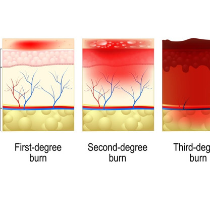 Facts About Burn Injury