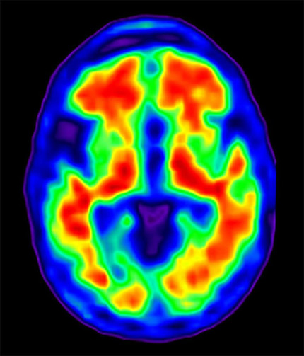 Brain Activity Study Offers Potential Insight into Alzheimer's Disease