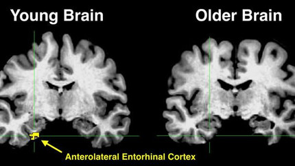 High Resolution Brain Imaging Provides Clues to Age Related Memory Loss