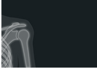 x-ray-1884888_1280.png