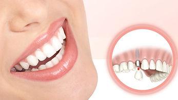 implantodontia-840x475.jpg
