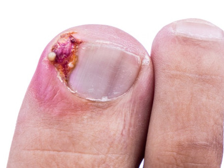 How to treat ingrown toenails