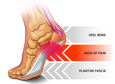 Plantar Fasciitis Pain Stops Here