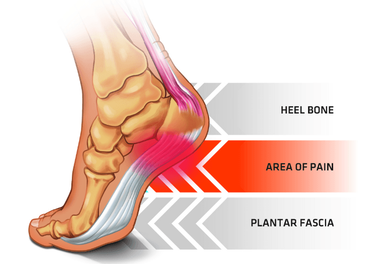 Fasciitis refers to an inflammatory reaction effecting this fascia.