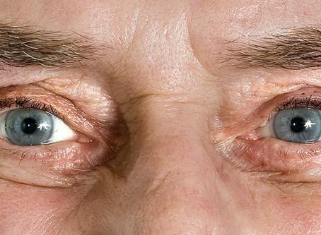 ¿Tienes más de 70 años y sientes que pierdes la visión? Puede ser degeneración macular