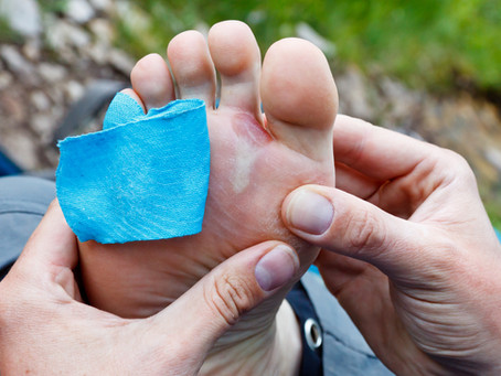 Foot Care On The Trail & Blister Prevention