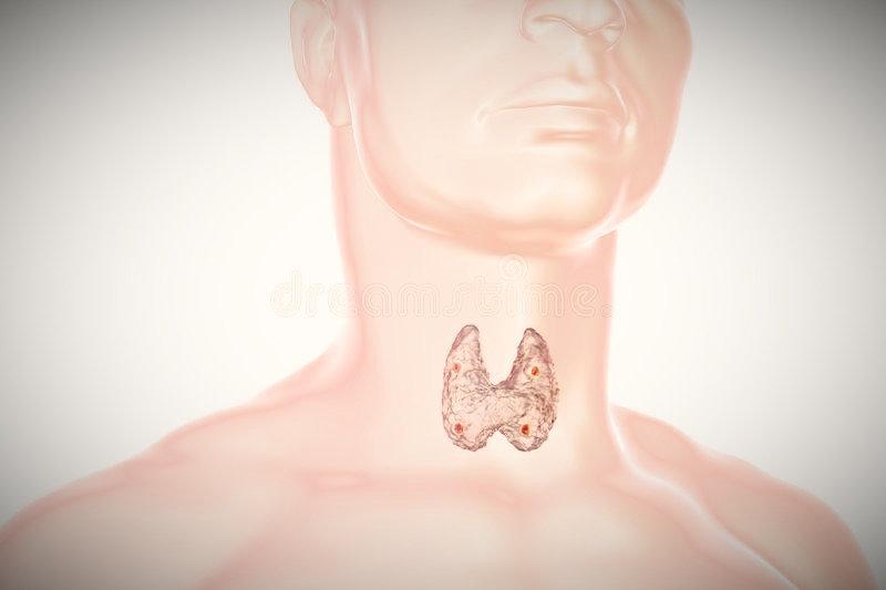 Valoración Integral de Nódulos Tiroideos