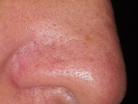 How to get rid of the blackheads on your nose