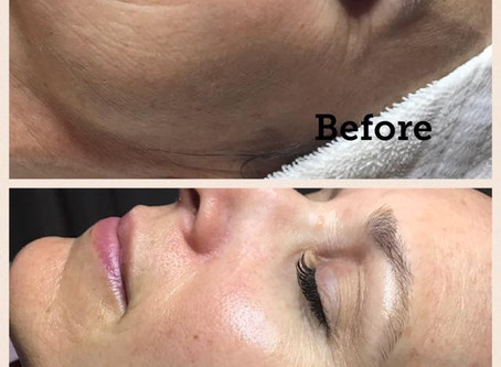 Get filler results without the needle with SculPLLA