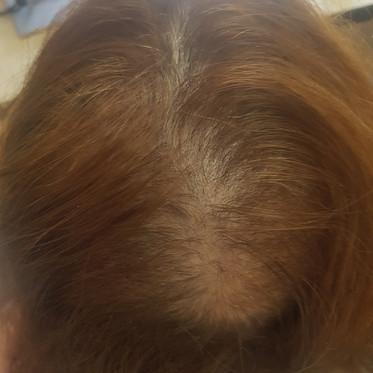 Alopecia permanente tras quimioterapia