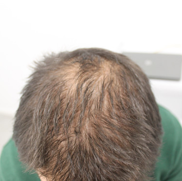 Alopecia y coronavirus : ¿Están relacionados?