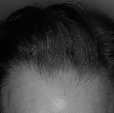 Pronóstico de la alopecia frontal fibrosante