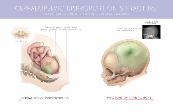 Cephalopelvic Disproportion and Fracture