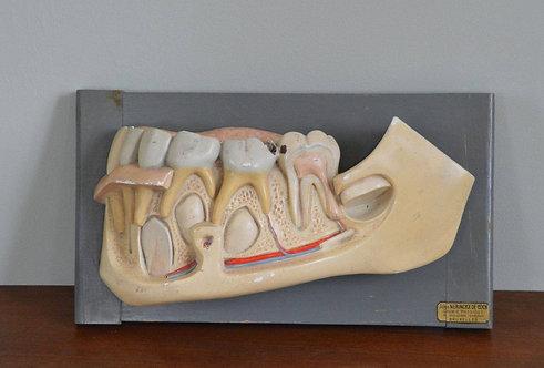 Groot antiek model van de menselijke tanden