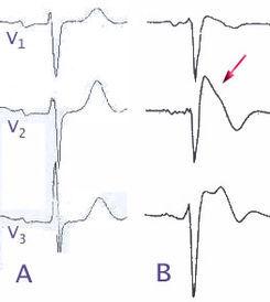 245px-Brugada_EKG_Schema-2.jpg
