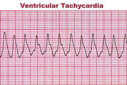 ventricular-tachycardia-deadly-heart-arr