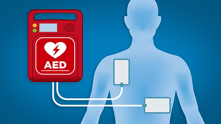 AED-CU-graphic-1600x900.png