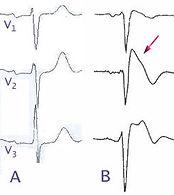 245px-Brugada_EKG_Schema.jpg