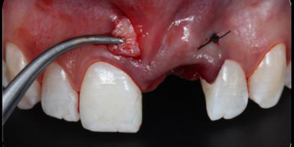 Imersão Premium em Implantodontia