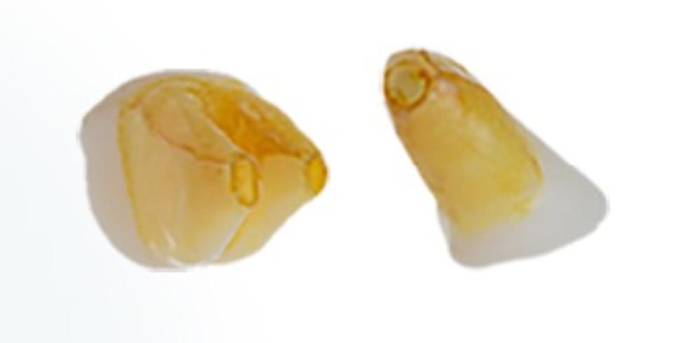Tratamento endodôntico de dentes permanentes com ápice aberto