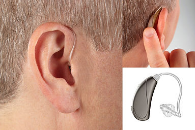open-fit-hearing-aid.webp