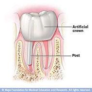 dentists in west springfield ma, dentists in springfield ma, riverside dental