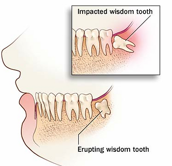 dentists in west springfield ma, dentists in springfield ma, riverside dental, wisdom tooth extraction