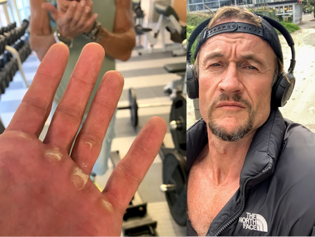 On developing callouses