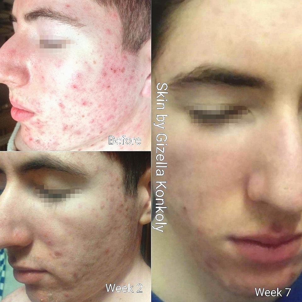 gkskinhealth_skincare_acne