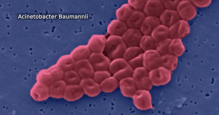 A Baumannii