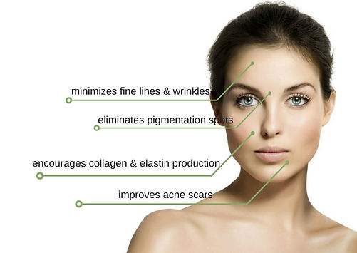 mimize fines lines and wrinkles using micro needling at elm boutique spa