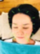 nami美容鍼_edited.jpg