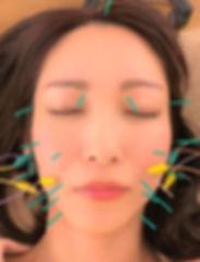 加藤さん美容鍼①.jpg