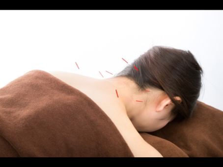 日頃の体調管理に鍼灸を
