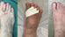 Halux Valgo (Joanete) - Cirurgia Percutânea