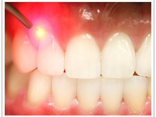 Οδοντιατρικό Laser