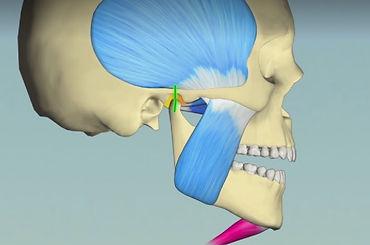 radio-prob-machoire-dentiste-3r.jpg