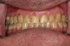 cas 1-rehabilitation-sourire-centre-3r-2