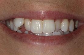 cas_1_avant-centre-dentaire-er.jpg