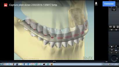 radio-plaque-occlusale-dentiste-3fr.png