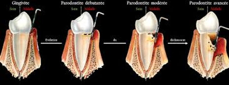 maladie parodontale.jpg