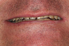 cas 1-rehabilitation-sourire-centre-3r.J