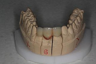 pont-fixe-centre-dentaire-3r.JPG