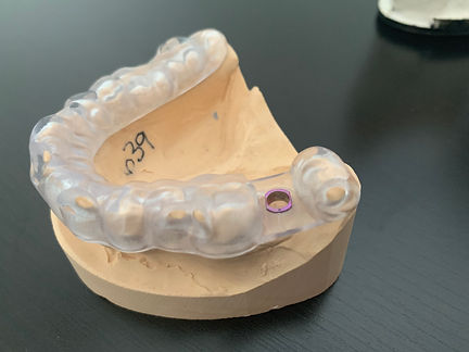 guide-chirurgical-centre-dentiste-3r.JPG