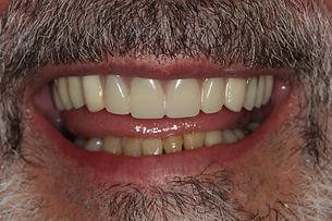 prothese_partielle-dentiste-3r.jpg
