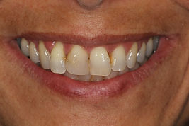 facette-dentaire-avant-dentiste-3r.jpg
